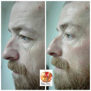 Gesicht und Körperlifting durch Ultraschall, welcher in der Tiefe der Haut wirkt.